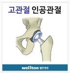 고관절통증 인공관절수술이 해답