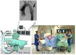 대동맥수술 가이드 - 대동맥 질환의 스텐트 ( Stent graft ) 삽입술 ( EVAR, TEVAR ) (2)  기본 시술방법