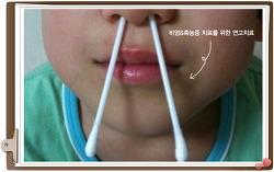 심한 일교차, 알레르기성 비염·천식 온다