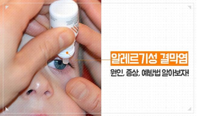 봄철 불청객, '알레르기성 결막염' 결막염 원인, 증상, 예방법 알아보자!