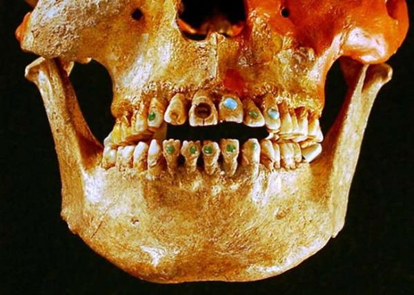 마야인 보석 치아 Mayan jeweled teeth history