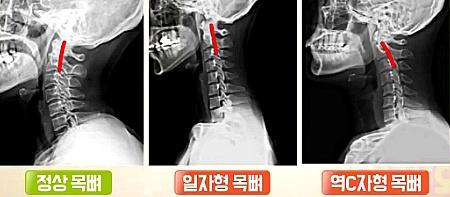 척추와 목뼈